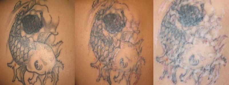 Tatowierung In Fipix Tattoo Kosten